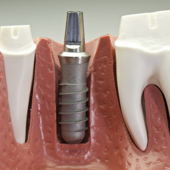Life Changing Dental Implants At Royal Dental Care